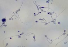 Заморозить сперму цена
